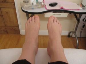 My Poor Ankles!